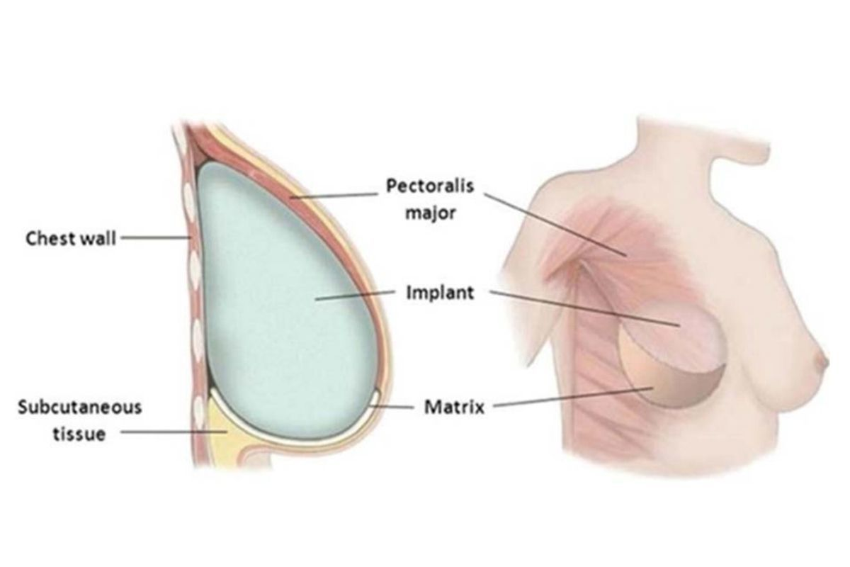 Breast Reconstruction Mesh May Increase Risks After Mastectomy
