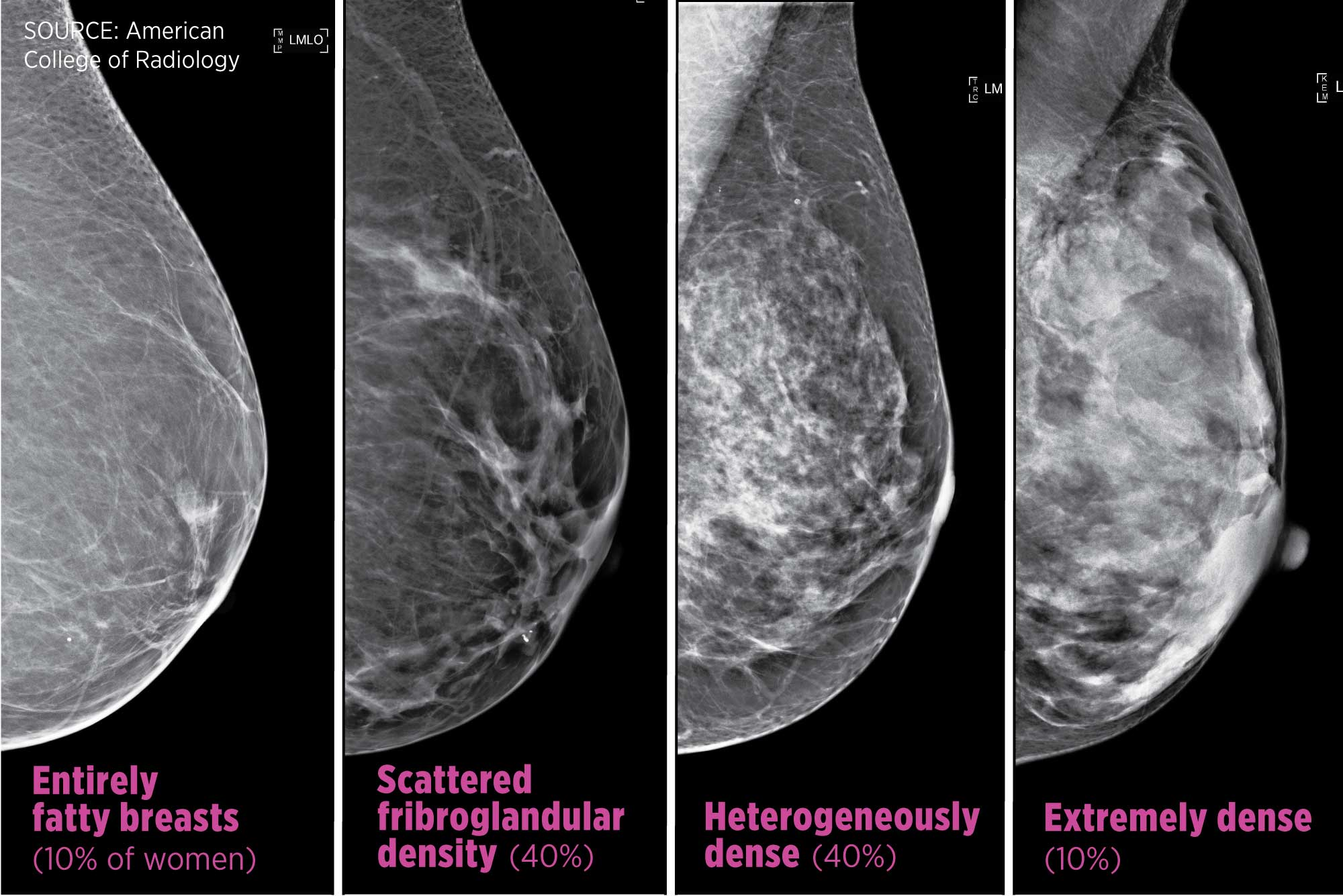 Breast Cancer Density Laws Mean More Tests Unclear Benefit